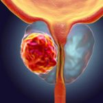 Dr. Edmund Folefac discusses the value of a screening prostate specific antigen (PSA) test